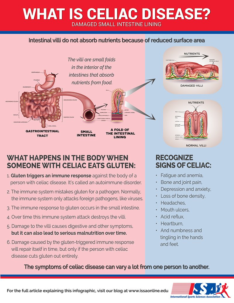 Celiac Disease explained