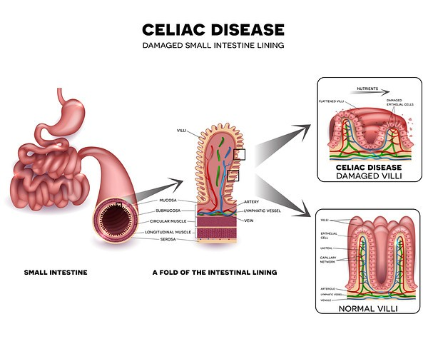 Celiac damage