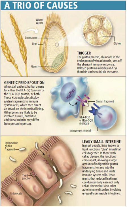 Celiac gene